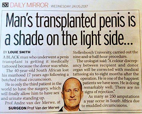 Trasplante de pene